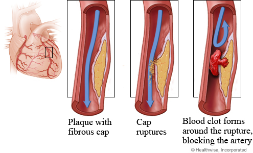 block arteri