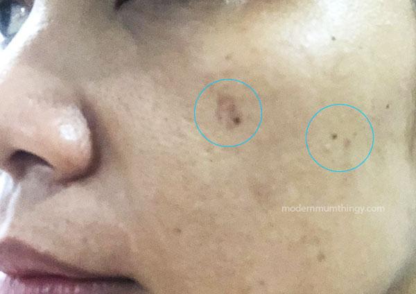 Rawat masalah pigmentasi