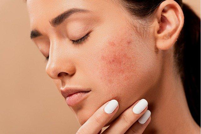 klinik sakit kulit